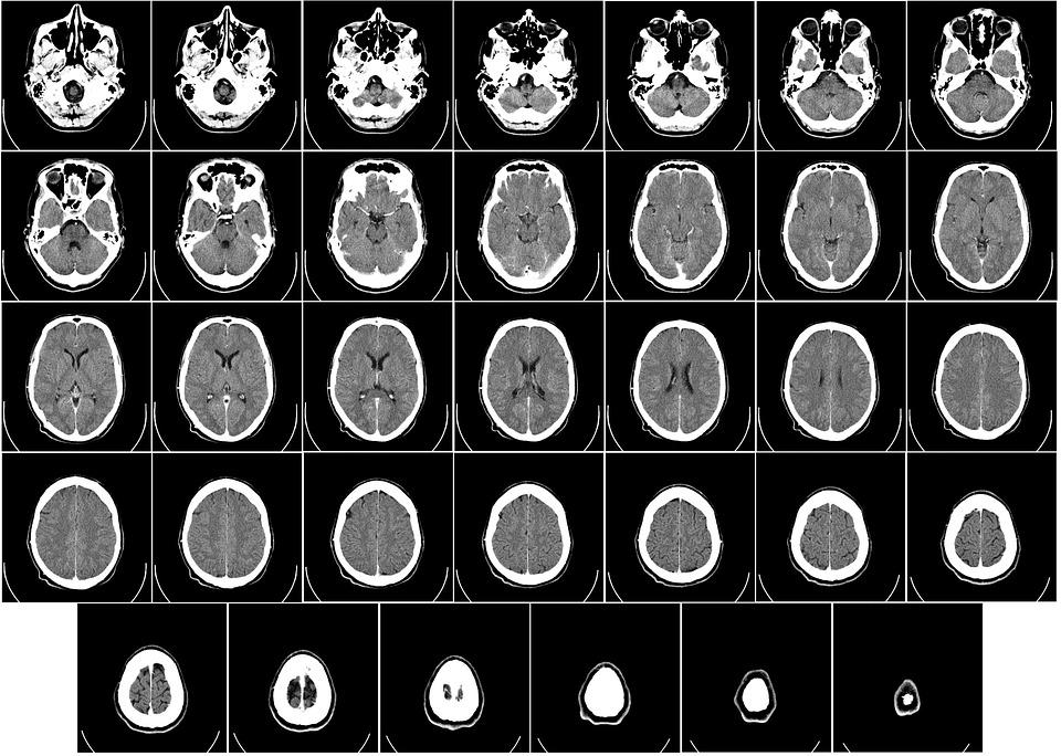 Parkinson, Malattie Neurodegenerative e Nutrizione.