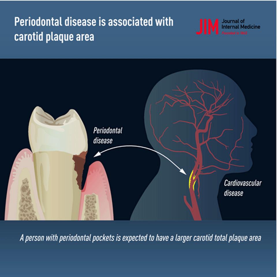 E' Alert sul legame tra Paradontite, Alzheimer e Placche Carotidee.